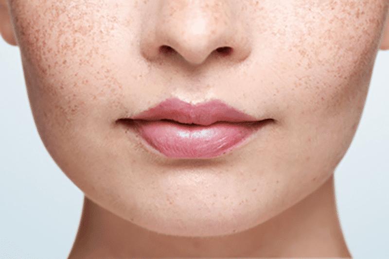 Close up of a woman with no visible cold sore on her lip | Une femme sans feu sauvage sur les lèvres